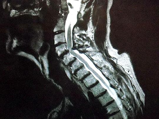 spine02